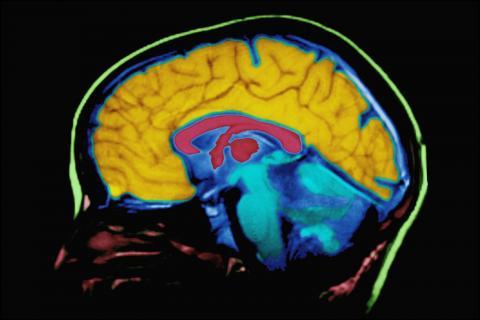 연구팀은 뇌의 보상중추를 확실히 자극할 수 있는 맛있는 음식이나 섹스와 같은 강력한 쾌감요인 대신 효과를 확인할 수 없는 공과 같은 새로운 요인에 대해 연구를 했다.  ⓒ ScienceTimes