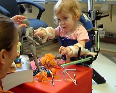 3D 프린터를 사용해 사람의 뼈와 두개골, 장기 등을 만드는 일이 최근 의료계에서 일상적인 일이 되고 있다.  사진은 3D 프린터로 만든 보형물을 착용하고 있는 아기.   ⓒhttp://www.stratasys.com/industries/medical
