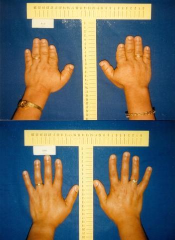 연구에 참여한 터키의 단지증 증상 가족들은 단지증이 나타나면 젊어서부터 심한 고혈압에 시달린다는 것을 알게 된다. 이 가족들에게 단지증은 항상 고혈압과 함께 유전돼 왔다. 사진 위는 단지증 증후군 여성의 손 부위 사진, 아래는 건강한 여성의 사진 (Photo: Hakan Toka/ Copyright: MDC)