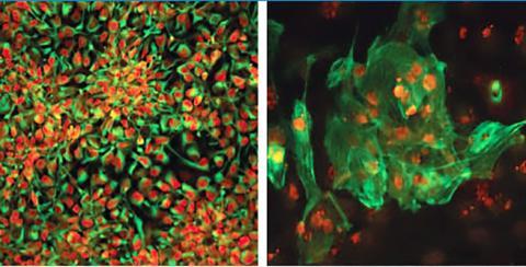 미국 소크연구소 연구원들은 미토콘드리아 질병을 가진 환자들로부터 질병 없는 줄기세포를 생성해 냈다. 이 줄기세포들은 신경 원시세포(좌)나 심장 세포(우) 등 어떤 세포로도 분화될 수 있다. 이 세포들은 앞으로 환자들에게 이식돼 치료에 쓰일 수 있을 것으로 기대되고 있다. ⓒ Salk Institute