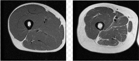 25세(좌)와 63세의 근육량을 촬영한 MRI 이미지 ⓒ buckinstitute.org