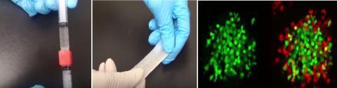 새로 개발된 암 치료용 바이오겔은 실험실 개발을 끝내고 동물시험과 인체 임상시험을 앞두고 있다. 바이오겔 소개 영상장면. https://www.youtube.com/watch?v=bIv0iTwKAE0#action=share  ⓒ CRCHUM