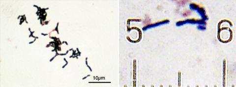 장에 서식하는 비피도박테리아가 면역력을 높이고, 항암 효과도 최신 면역 항암제와 유사하다는 연구 결과가 나왔다. 사진은 비피도박테리아의 한 종류인 비피도박테리움 아돌레센티스(Bifidobacterium adolescentis, 좌)와 아니말리스(Bifidobacterium animalis). ⓒ Wikipedia(Y tambe / Bob Blaylock)