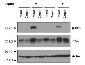 맨 윗줄이 활성화된 지방분해효소(p-HSL)의 양이다. 렙틴을 투여한 경우(Leptin +부분) 중 신경세포가 온전한 경우(Intact)에만 활성화된 효소가 검출되었다. 신경세포에 물리적 손상이 가해진 경우(Crush)에는 활성화된 효소가 검출되지 않았다. ⓒ Zeng et al.