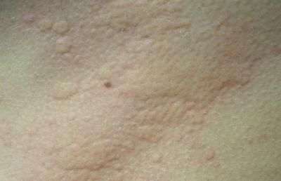 알레르기의 일종인 두드러기 ⓒ wikipedia