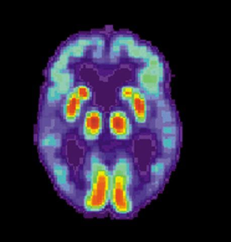 알츠하이머병 환자 뇌의 양전자단층(PET) 촬영 사진. 뇌의 가에 있는 언어능력을 담당하는 측두엽이 손상돼 있다.  ⓒ Wikipedia /US National Institute on Aging