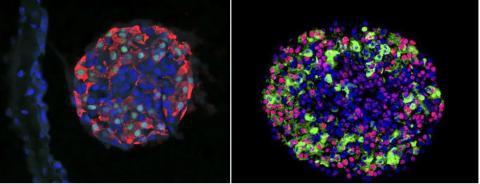혈당을 감지하는 인슐린. 면역체계가 알아차리지 못 하도록 보호된 캡슐 안에 들어있는 줄기세포 유래 췌장 섬 세포에서 분비된다.  ⓒ MIT