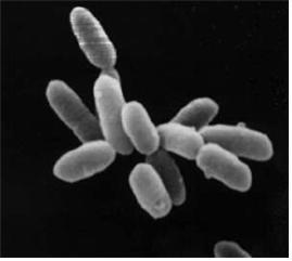 호염성세균을 현미경으로 찍은 모습. 김치의 발효를 담당하는 주역인 유산균은 호염균의 일종이다.  ⓒ Wikimedia Photo