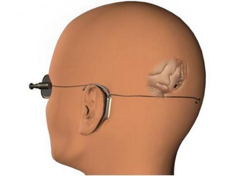 망막을 통해 시각정보를 받아들이고 뇌가 이를 인지하게 된다. ⓒ Mohamad Sawan / wikipedia