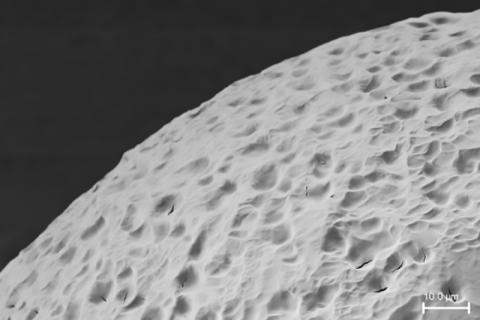 췌장 섬 세포를 집어넣는 캡슐을 형성하는 '스텔스 물질'의 표면 전자현미경 사진. 인체 면역체계가 알아차리지 못 하도록 '보이지 않는 망또'를 입힌다.  ⓒ MIT