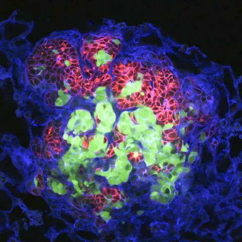 여러 색깔의 쥐의 유선암에서 떨어져 나온 최소한 두 개 이상의 암세포(붉은색과 초록색)로부터 유래된 전이암이 폐 조직에서 자라고 있는 모습(푸른색). 사진 Courtesy of Breanna Moore, Cheung laboratory, Fred Hutchinson Cancer Research Center ⓒ ScienceTimes