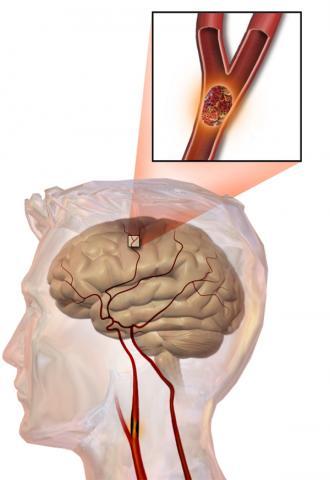 뇌혈관이 막혀서 생기는 허혈성 뇌졸중(그림)은 발생 3~6시간 안에 혈전용해제를 주입해 치료를 해야 한다. 스웨덴-이스라엘 연구진은 뇌졸중 발생 수주 안에 면역세포 자극 치료를 통해 회복을 돕는 연구를 추진하고 있다.  ⓒ Wikipedia / Blausen Medical Communications, Inc.