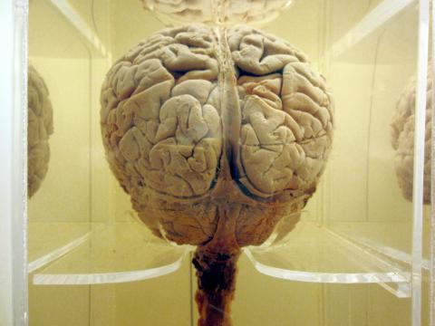 최근 사람마다 다른 뇌 반응 차이를 이용해  개인을 식별하는 '뇌문(brainprint)' 기술이 개발되고 있어 화제다. ⓒ morgueFile free photo