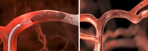 현재 쓰이고 있는 스텐트 리트리버 제품들. 왼쪽은 TREVO, 오른쪽은 Solitaire 작동 그림. 각사 홈페이지. ⓒ ScienceTimes