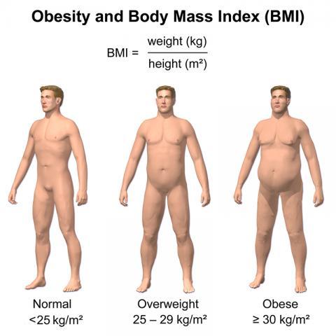 체질량지수 도표. 체질량지수가 늘어나면 암 발생 위험도 증가하는 것으로 밝혀졌다.  사진 Wikipedia / BruceBlaus