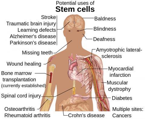 줄기세포 치료가 가능할 것으로 예상되는 질병과 조건들. 그림 Wikipedia / Mikael Häggström ⓒ ScienceTimes