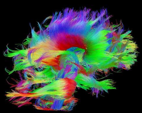 뇌 신경회로를 알기 쉽게 칼라로 표현한 모습. ⓒ 휴먼 커넥톰 프로젝트