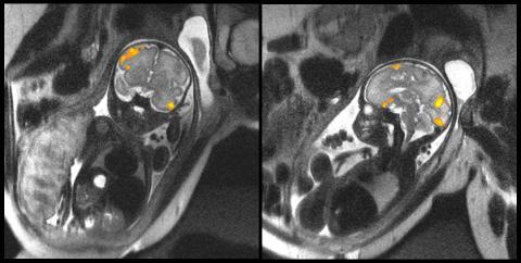 fMRI로 촬영한 태아 뇌 영상.  영상으로 태아 뇌 세포를 촬영한 것은 이번이 처음이다. 뇌세포의 활성화가 어느 정도인지 비교해 보여주고 있다.   ⓒMoriah E. Thomason, Wayne State University School of Medicine