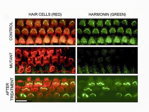 정상적인 단백질 생산 회복. 맨 윗줄의 건강한 대조군 실험 쥐는 정상적인 유모세포(빨간색)를 가지고 있으며, 제대로 된 전체 길이의 하모닌 단백질(녹색)을 생산한다. 중간 줄의 Ush1c 돌연변이가 있는 쥐는 하모닌이 없는 유모 세포를 파괴한다. 맨 아래 줄은 건강한 Ush1c 유전자를 전달하는 유전자 치료 후, 전체 길이의 하모닌이 다시 생산돼 유모 세포에서 보여진 모습. 사진 : Gwenaelle Géléoc, Boston Children's Hospital