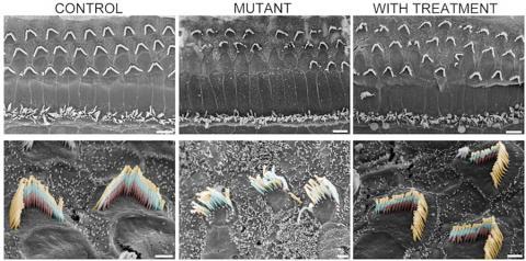 유모세포 뭉치의 건강성. 왼쪽의 건강한 실험 쥐는 감각 유모 묶음이 세 줄의 섬모(왼쪽 아래)를가진 V자형으로 구성되어 있다. 이렇게 정돈된 구조가 돌연변이 실험 쥐(가운데 줄)에서는 흐트러져 있으나 유전자 치료 후에는 극적으로 회복된 모습을 보인다(오른쪽 줄). 사진 : Gwenaelle Géléoc and Artur Indzkykulian