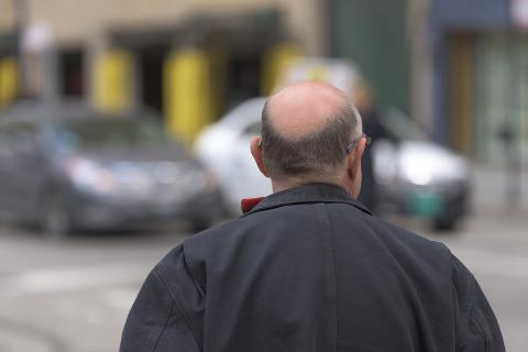 유럽 남자들은 80%가 대머리를 겪는다. ⓒ Pixabay