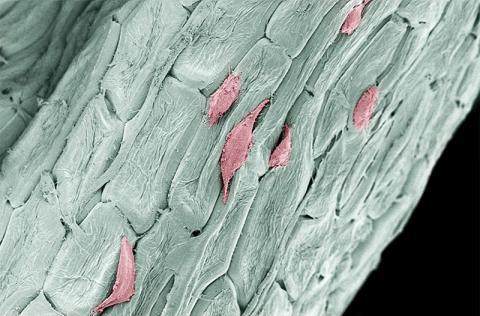 인체의 일반적인 섬유아세포가 세포를 제거한 파슬리 비계 구조물에서 자라고 있는 모습. 미국 위스컨신-매디슨대 머피 교수팀은 손상된 뼈와 조직을 고치는데 사용될 수 있는 입체 구조물을 만들기 위해 식물 사용을 모색하고 있다.  Credit: Gianluca Fontana/UW-Madison