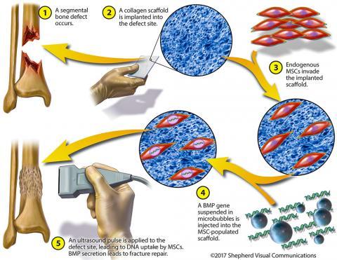 시더스-사이나이 연구팀이 개발한 뼈-조직 공학기법을 나타낸 그림. 'Endogenous MSCs'는 환자의 뼈에서 나오는 줄기세포를 지칭하며, 'BMP gene'는 뼈 수복을 증진하는 유전자다.   Credit: Gazit Group/Cedars-Sinai