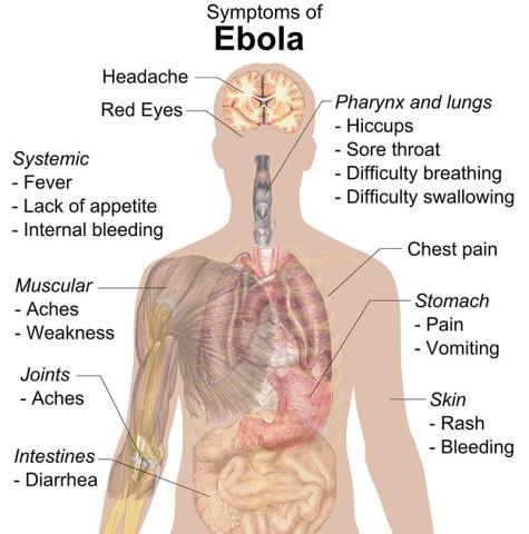 에볼라바이러스에 감염됐을 때 인체 부위에 나타나는 증상.  Credit : Wikipedia / Mikael Häggström