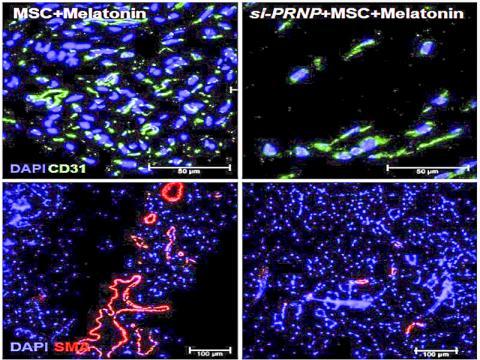 하지 허혈 동물모델에 중간엽 줄기세포 이식 후 28일 차에 혈관형성 표지인자인 모세혈관 표지인자(CD31)와 동맥 표지인자인 alpha SMA를 면역형광염색을 통해 확인한 결과, 중간엽 줄기세포를 이식하고 멜라토닌을 투여한 그룹에서 동맥과 모세혈관 밀도가 가장 높은 것으로 나타났다. 프리온 단백질(PRNP: 프리온 단백질 유전자)을 억제한 줄기세포를 이식하고 멜라토닌을 투여한 그룹은 혈관 형성 비율이 낮았다. 사진 제공 : 이상훈 교수연구실 / 순천향의대