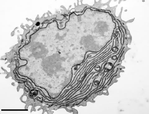 항체를 분비하는 형질세포의 전자현미경 사진. 이 형질세포는 항원과 CpG 단백질을 코팅한 나노입자로 만들었다. Credit: Sanjuan Nandin et al., 2017