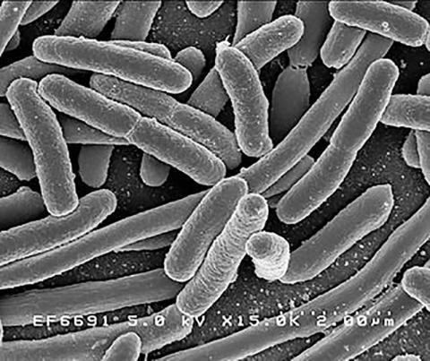 인간의 장 내에 서식하는 대표적인 미생물 중 하나인 Escherichia coli(E-coli) 대장균.  Credit: Rocky Mountain Laboratories, NIAID, NIH