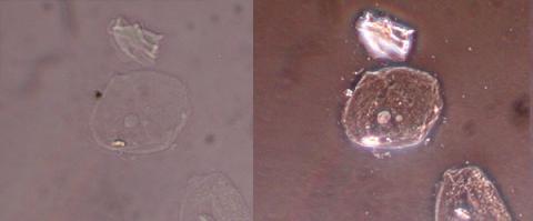 위상차현미경으로 찍은 세포 이미지(우측) ⓒ Free Photo