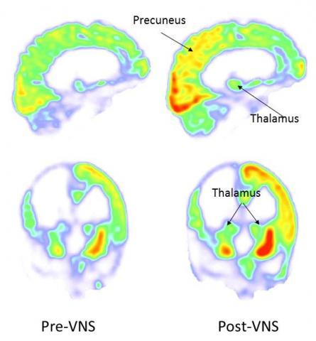 15년 동안 식물인간 상태로 있던 35세 남성에게 미주신경자극 치료법을 쓴 결과 뇌의 활동이 활발해졌다. 대사량을 보는 FDG-PET 데이터로, 오른쪽 두정엽과 후두엽, 시상(thalamus), 설전부(precuneus)의 증가가 두드러진다(왼쪽이 전, 오른쪽이 후). ⓒ '커런트 바이올로지'
