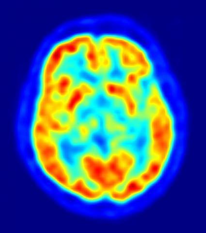 뇌과학의 난제였던 '의사결정' 과정의 비밀을 밝히기 위해 미국과 유럽 21개 연구소가 공동 연구를 시작했다. 사진은 양전자단층촬영(PET)으로 들여다본 뇌 영상.