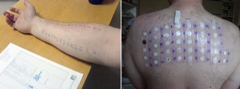 알레르기 반응을 검사하는 피부테스트(왼쪽)와 패치 테스트.  음식 알레르기 검사에는 '음식 구강반응검사'가 가장 좋은 방법으로 알려져 있다.