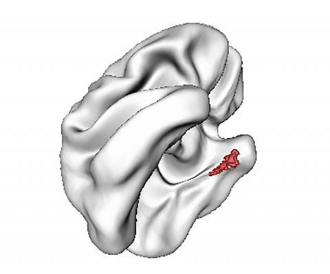 내후각 피질(빨간색)은 알츠하이머 관련 ApoE4 유전자 변이가 있는 청소년에게서 가장 얇게나타난다.   Credit : Wikimedia Commons / Philip Shaw, M.D., NIMH Child Psychiatry Branch