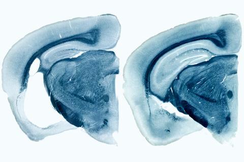 기억에 중요한 역할을 하는 뇌 부위가 알츠하이머병 고위험 유전자인 ApoE4를 가지고 있는 실험용 쥐의 뇌에서 위축돼 뇌에 체액이 채워진 큰 구멍이 만들어졌다(왼쪽 사진 흰 부분). 이에 비해 오른쪽의 이 유전자가 없는 쥐에서는 구멍이 매우 작다.    Credit: Yang Shi