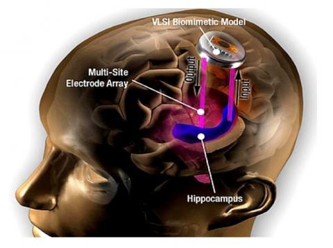 스타트업 커널의 뇌 보철 개념도. 해마에 전극을 심어 정보를 장기 기억으로 전환한다. ⓒ 커널