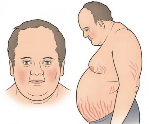쿠싱 증후군의 대표적 증상 ⓒ hormone.org