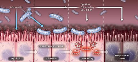 2012년 학술지 '사이언스'에는 유전자독소인 콜리박틴을 만드는 대장균 NC101 균주가 항염증 사이토카인인 인터류킨-10을 만들지 못하는 돌연변이 생쥐에서 대장암을 일으킨다는 연구결과가 실렸다. 그 과정을 묘사한 일러스트다. 한편 대장암 환자의 장내 미생물에서도 대장균 NC101의 비율이 높다. 프로바이오틱스로 쓰이는 대장균 니슬 1917과 대장암의 연관성은 없지만 이 균주도 콜리박틴을 만든다. 그런데 최근 연구결과에 따르면 콜리박틴을 만들지 않으면서 프로바이오틱스의 효과는 지니는 대장균 니슬 1917 변이체를 만들 수 있다(자세한 내용은 본문 참조).  ⓒ 사이언스