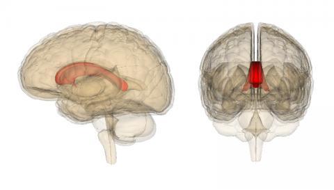 좌뇌와 우뇌를 연결하는 뇌량(붉은색)의 위치와 형태를 보여주는 그림이다. 뇌전증이 심할 경우 뇌량의 앞쪽을, 아주 심각할 경우 전부를 절제하는 뇌량절제술이 오늘날에도 행해지고 있다.  ⓒ 위키피디아