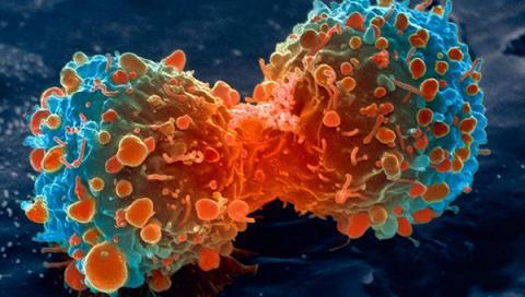 혈액검사를 통해 암을 조기 진단할 수 있는 '액체생검'의 정확도가 70%까지 높아지면서 암을 사전에 미리 예방할 수 있는 길이 열리고 있다. 사진은 폐암세포를 확대한 사진.