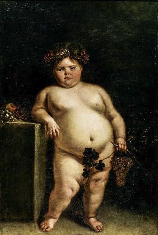 스페인 화가 후안 카레뇨 미란다(Juan Carreño de Miranda, 1614- 1685)가 1680년에 그린 소녀 그림. 비만이 특징인 프래더-윌리 증후군을 가졌던 것으로 짐작된다.  Credit: Wikimedia Commons