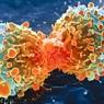 암 진행 막는 암세포지수 개발
