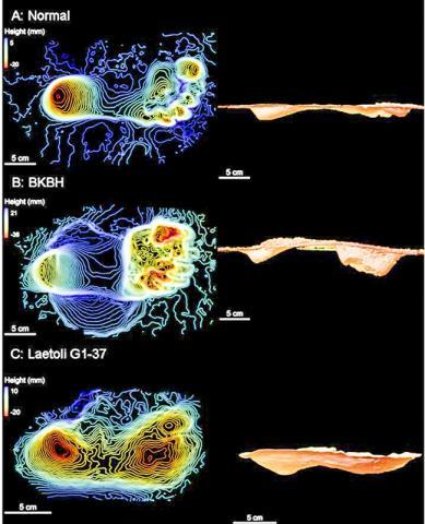 (A)는 현대인이 통상적으로 걸을 때 나타나는 발자국. (B)는 현대인이 무릎과 엉덩이를 구부린 자세(bent knees, bent hip : BKBH)로 걸었을 때의 발자국. (C)는 탄자니아 라에톨리에 발견된 360만년 된 호미닌의 발자국. 연구팀은 이 같은 분석 결과 고대 인류 조상들은 현대인과 매우 유사한 방식으로 걸었다고 보고 있다.  CREDIT: David Raichlen, University of Arizona