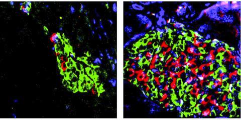동물 모델에서 비타민D 활성을 강화시켜 2형 당뇨병 진행을 억제한 모습. 왼쪽은 당뇨병을 가진 쥐의 췌장에 있는 손상된 인슐린 양성 B세포(빨간색), 오른쪽은 비타민D 활성제와 BRD9 억제제를 병용 투여해 B세포가 보호되고 있는 모습.  CREDIT: Salk Institute