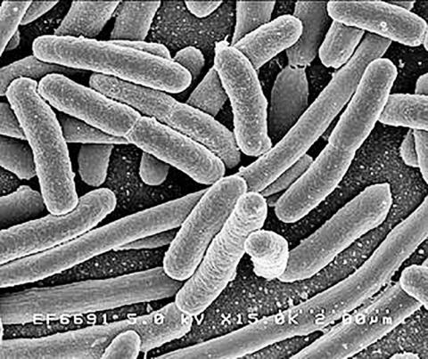 인체의 장에 서식하는 박테리아 중 하나인 E.coli. Credit: Rocky Mountain Laboratories, NIAID, NIH