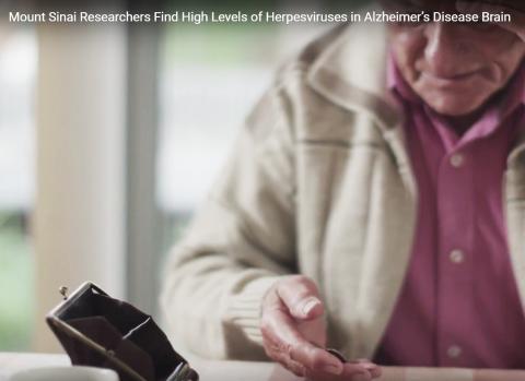 인지기능 퇴화로 일상생활에 어려움을 겪는 치매 환자.  CREDIT: Mount Sinai Health System