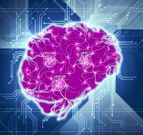 두뇌의 복잡한 상호작용 네트워크가 이번 연구에서 확인된 핵심 바이러스종(HHV-6A, HHV-6B, HHV-7)에 의해 연결이 붕괴된 상태를 나타내는 그림.  CREDIT: Readhead et al.