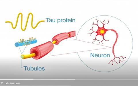 미국 텍서스대 남서메디컬센터 연구진은 건강한 단백질이 독성은 띠었지만 아직 치명적인 엉킴을 형성하기 직전의 정확한 지점인 알츠하이머에서의 '빅뱅'을 발견했다고 밝혔다. 뉴런에서 신경섬유 엉킴을 유발하는 독성 타우 단백질 그림 동영상 캡처.  CREDIT: UT Southwestern
